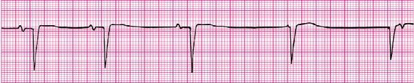 ECG can be photographed and sent for care coordination